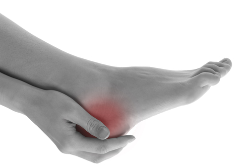 Image-for-Heel-Spurs-Article