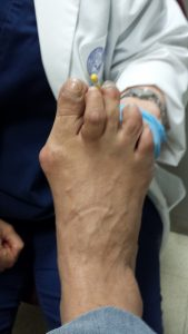 hammertoe-and-bunion